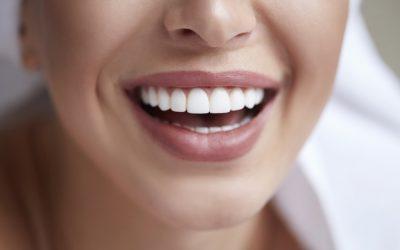 Prótese Dental Estética