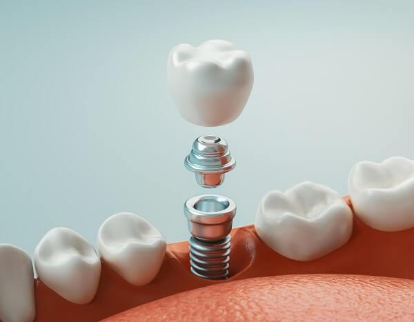 Implantes Dentários - Goldmann