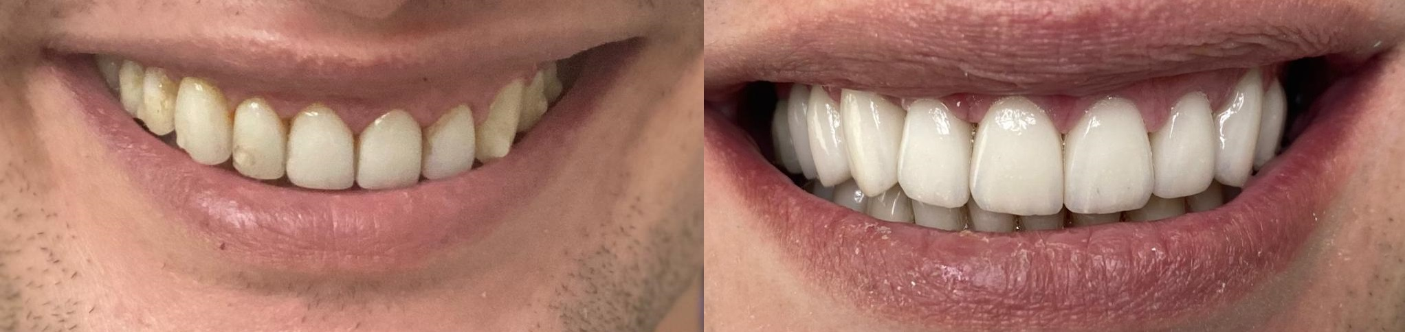 Periodontia Goldmann Odontologia